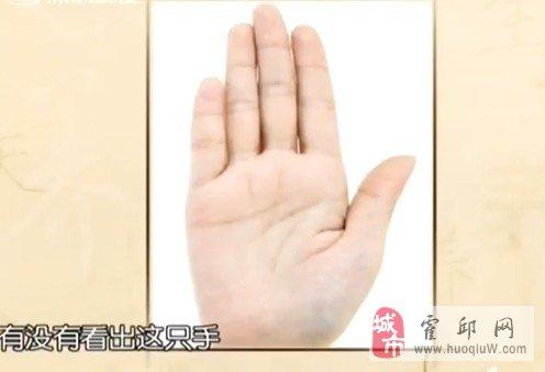 教你一招:按摩小拇指可补肾