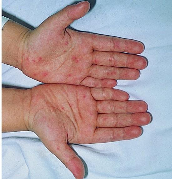 手足口病的特点是传播快