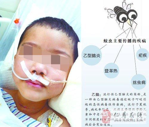 5岁女孩遭蚊子叮咬昏迷超82天 至今未苏醒